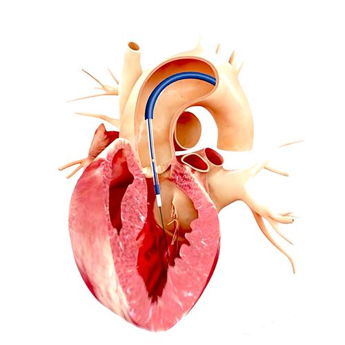 Chirurgie des valves cardiaques