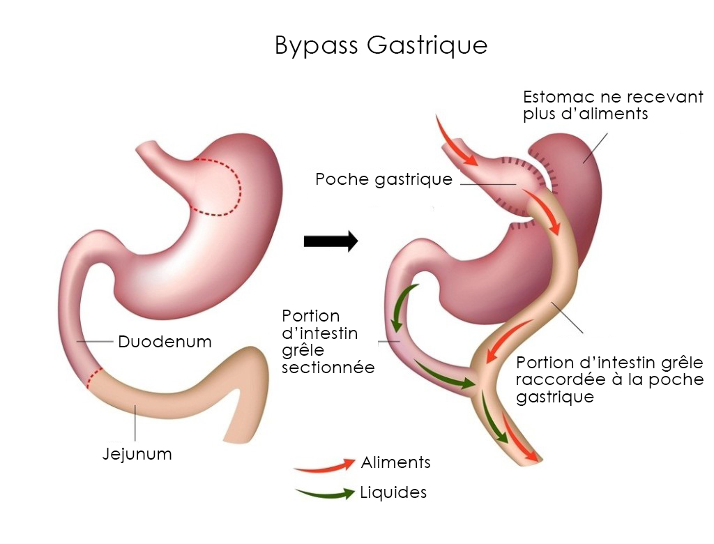 Chirurgie du Bypass gastrique