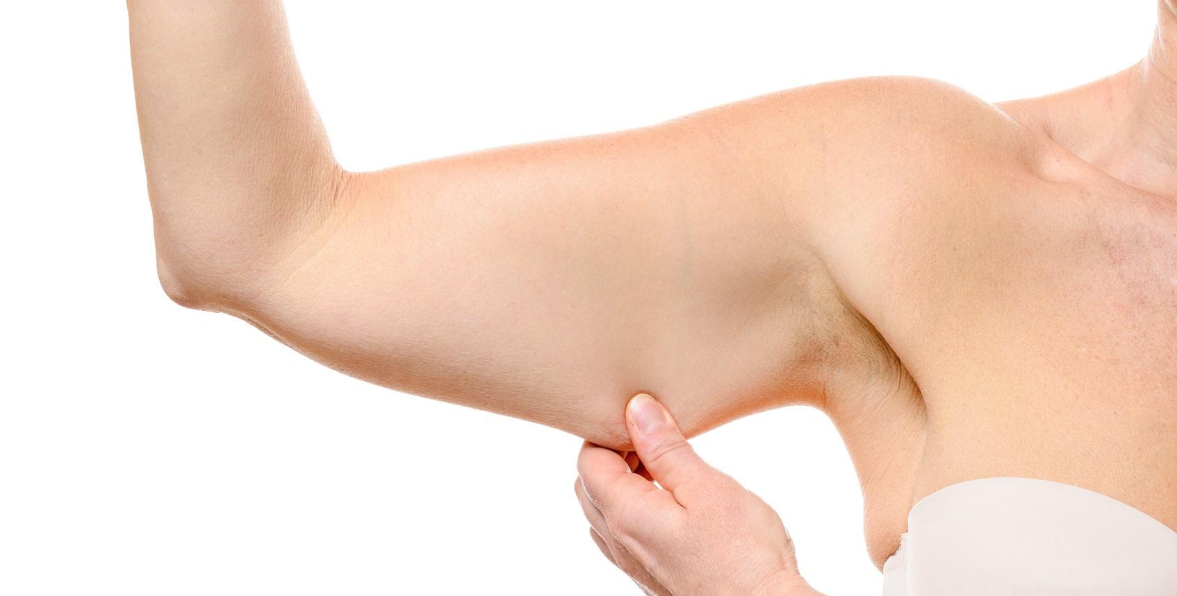 Lifting des bras - Brachioplastie