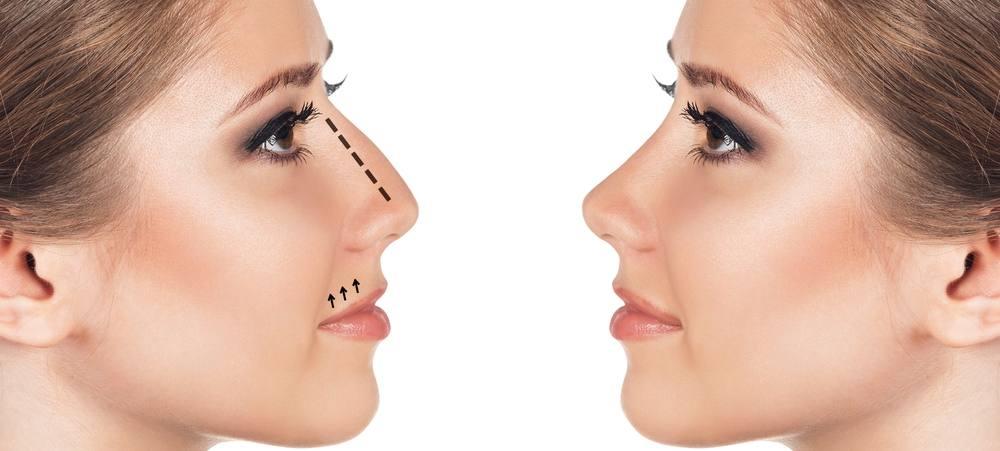 Rhinoplastie - Chirurgie esthétique du nez